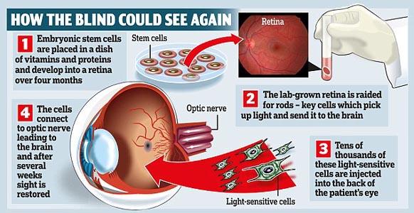 09n-STEM CELL eyes