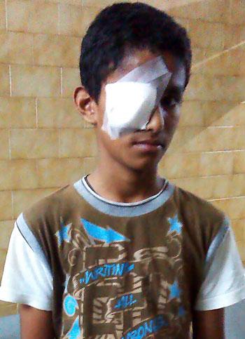 amogha_eye_injured