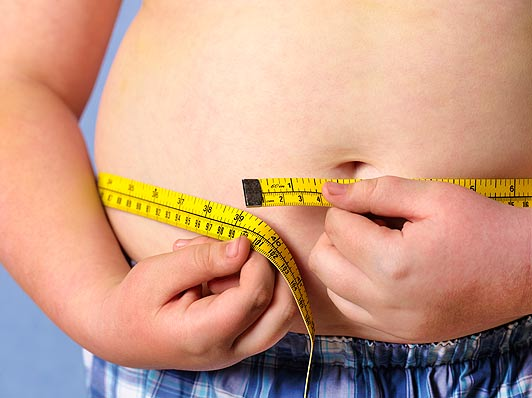 obese-child