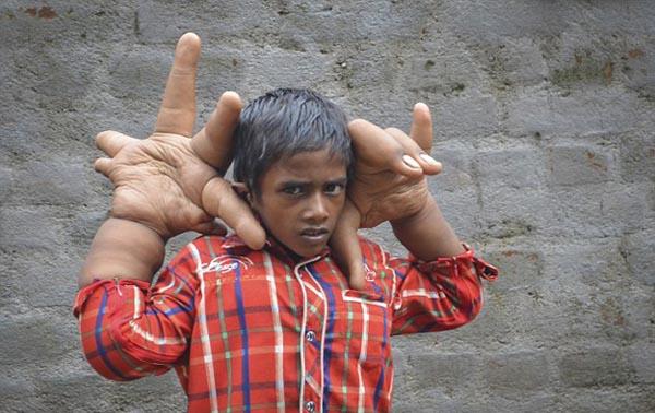 huge Hand1