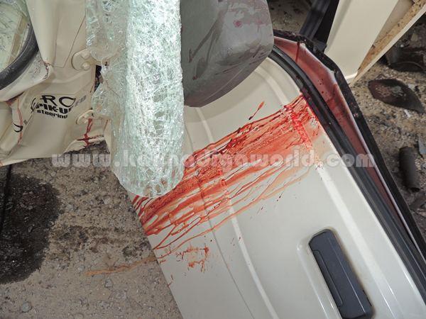 Kumbashi_Bus-pickup_Accident (8)