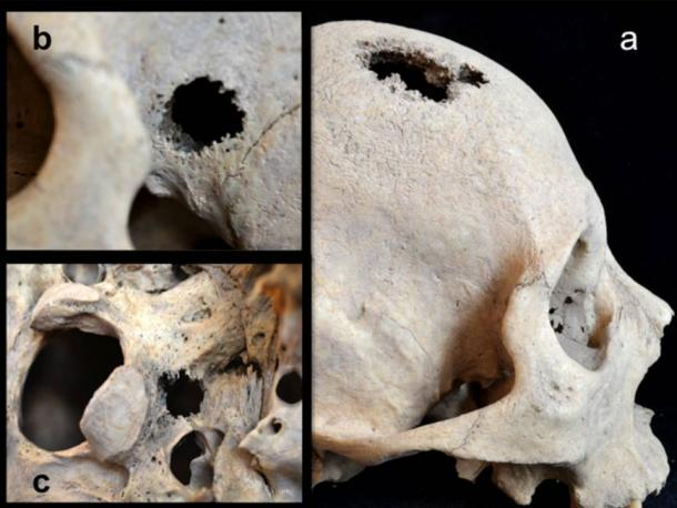 lesions-holes-skull-cancer
