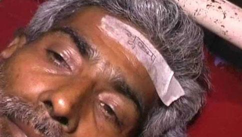 bihar-earthquake-victim