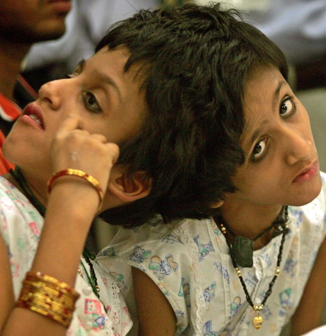 Conjoined twins attend news conference in New Delhi