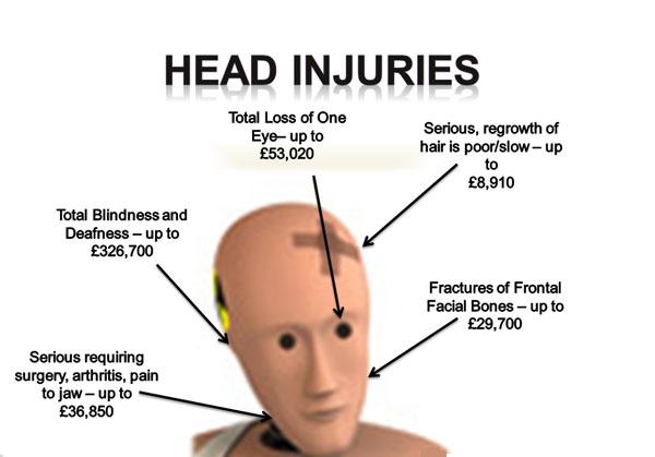 The Terms Traumatic Brain Injury and Head Injury | KANNADIGA