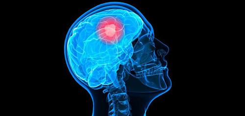 brain-cancer-web-