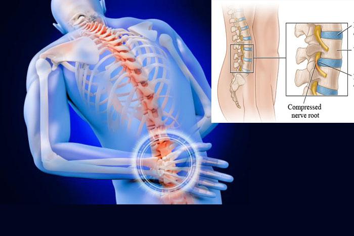 back_bone_disc