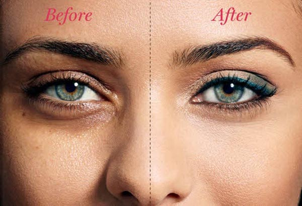 remove-dark-circles