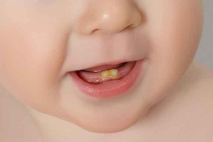 baby_teeth_pic