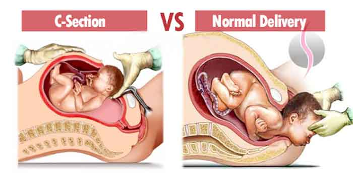 csection_normal_delvry