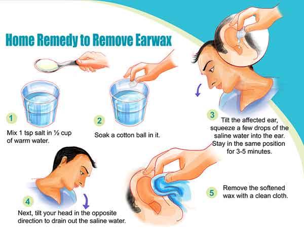 ear_wax_removal1